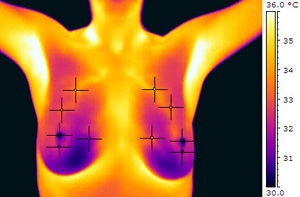 Breast thermography centers in massachusetts